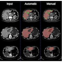 Projet de logiciel d'automatisation de la détection de tumeurs